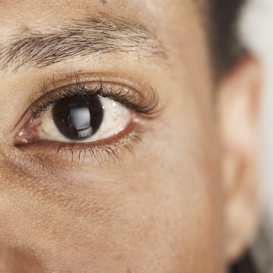 Eye mucus can be a sign of conjunctivitis.