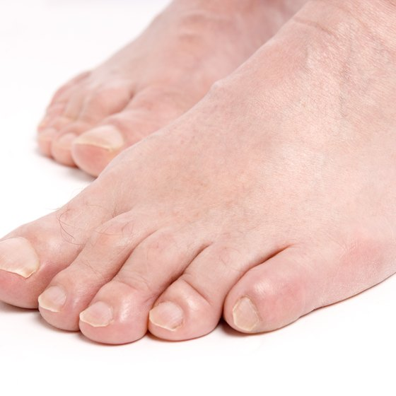 Tagamet For The Treatment Of Plantar Warts Healthy Living