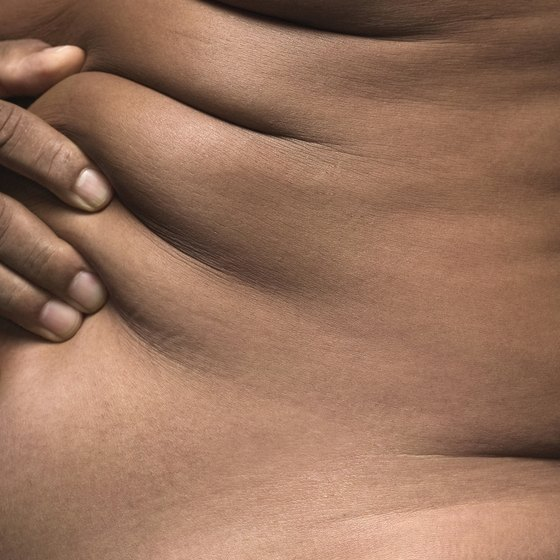 Both overweight and averaged size people can develop stretch marks.