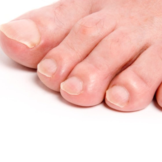 Wounded toes can be wrapped together to create a more secure bandage.