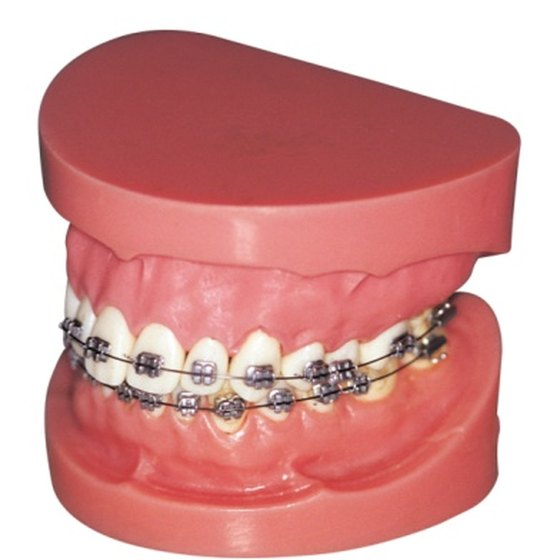 A retainer is a dental device that keeps teeth from shifting.