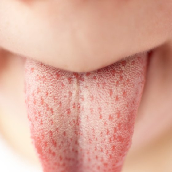 Cleaning a white tongue is relatively simple but requires consistency.
