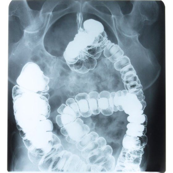 Foul-smelling burps can indicate a problem with the digestive tract.