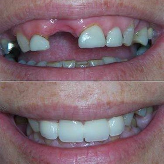 Good partial dentures are impossible to distinguish from your natural teeth.