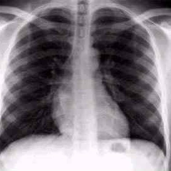 Healthy Lungs Vs Smokers Lungs X Ray What Does a Smoker's X...