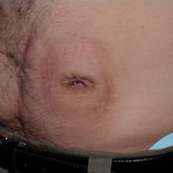 What Does a Normal Stoma Look Like?