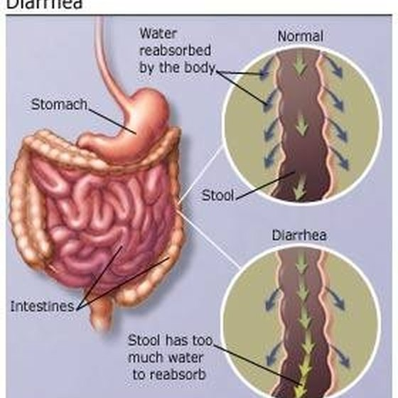Foods That Cause Diarrhea