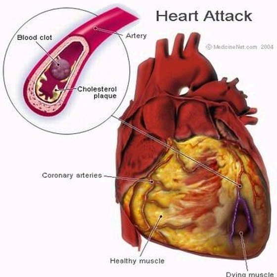 Heart Blockage Symptoms