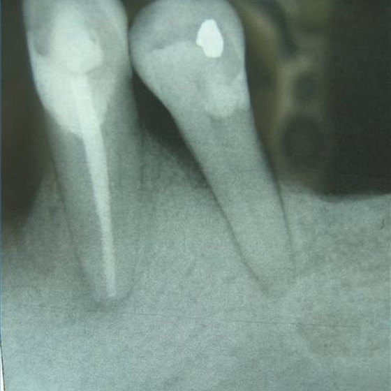 Bone loss in two molars due to advanced gum disease