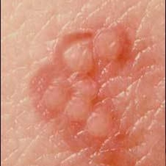 The herpes simplex 1 virus is charactized by small blisters.