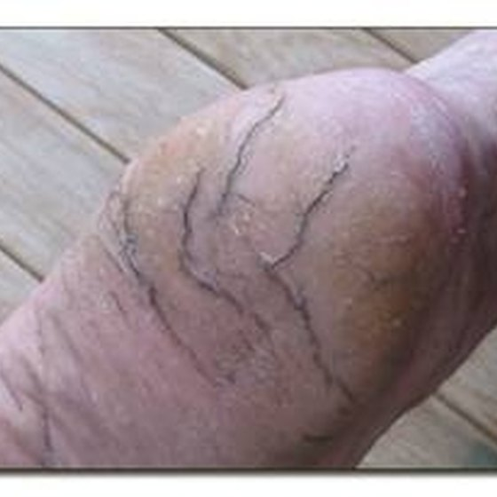 Remedies for Cracks in Feet