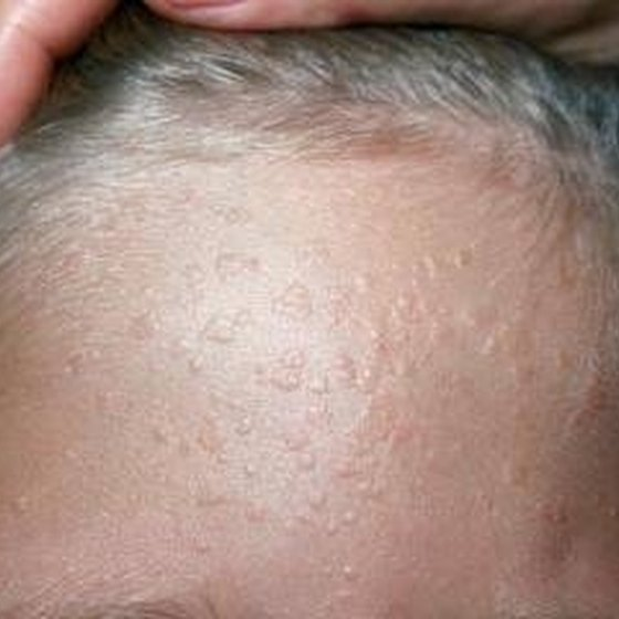 Flat warts on the forehead