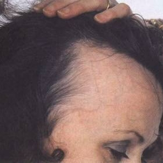 How to stop receding hairline female