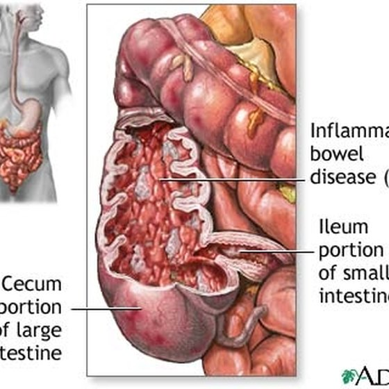 Colon Inflammation Treatment