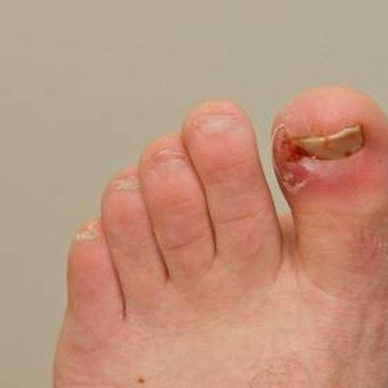 Brennende Fußsohlen