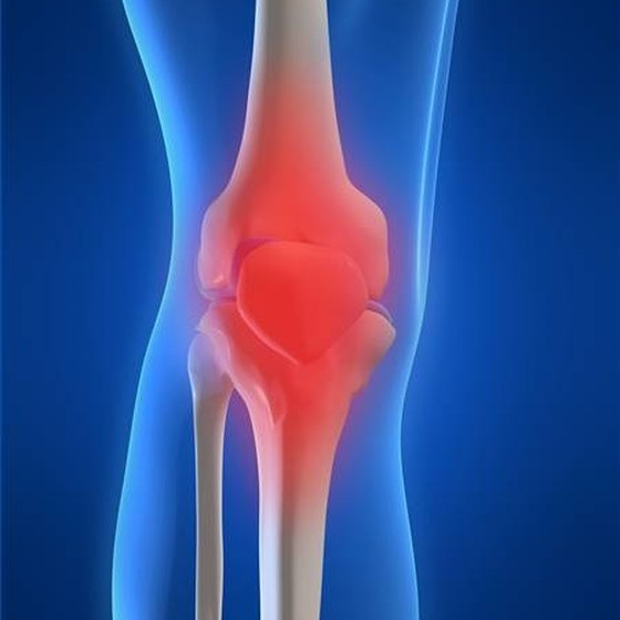 What Are the Treatments for Osteoarthritis in the Knee?
