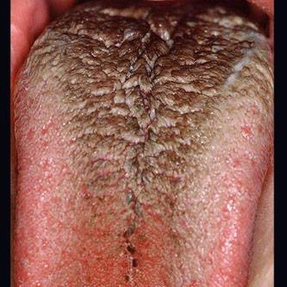 Black Tongue Symptoms