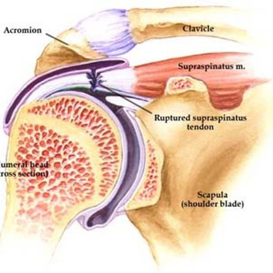 What Is The Supraspinatus Tendon Healthy Living