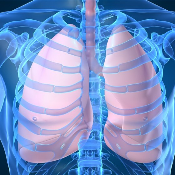 What to Expect With Lung Cancer Stage 3