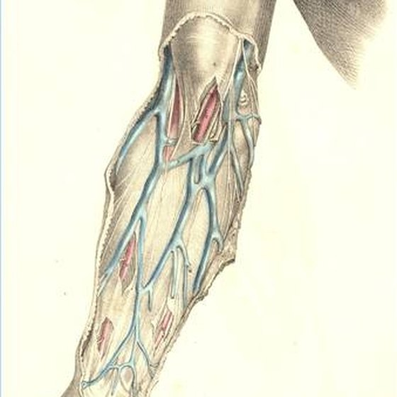Basilic Vein Thrombosis Treatment