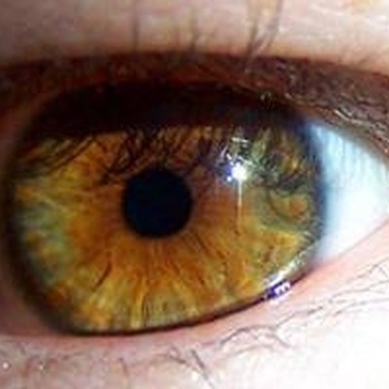 Floaters exist in your eye's retina.