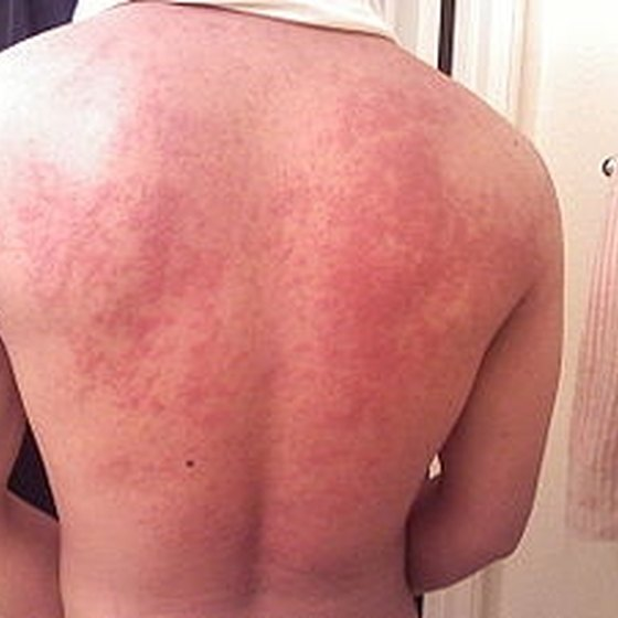 Causes of Hives Healthy Living