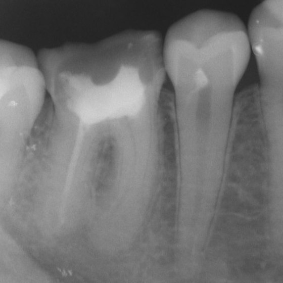 Can a Tooth Abscess Cause Infection in the Body?
