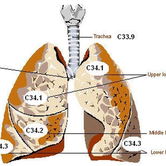 List of Pulmonary Diseases