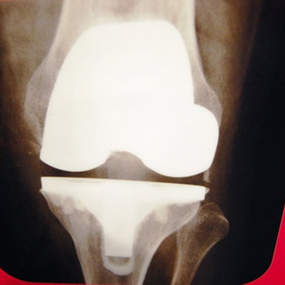 An X-ray of the knee is taken before surgery.