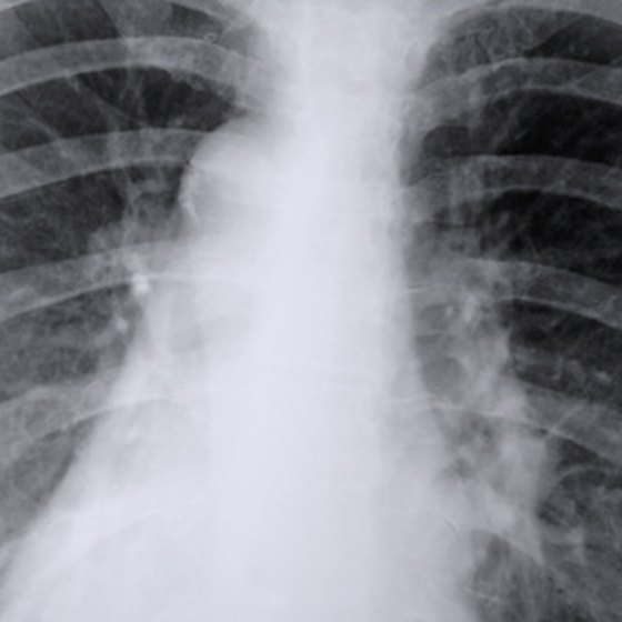 Chest x-rays are valuable tools for the diagnosis of diseases like lung consolidation.