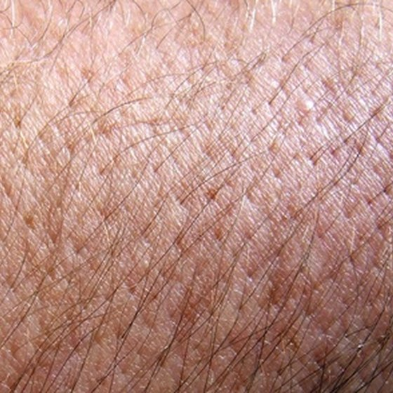 Normal skin becomes inflamed and blistered.