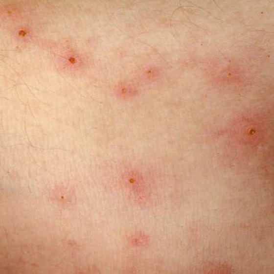 Allergic reactions to bug bites can cause raised bumps on the skin.