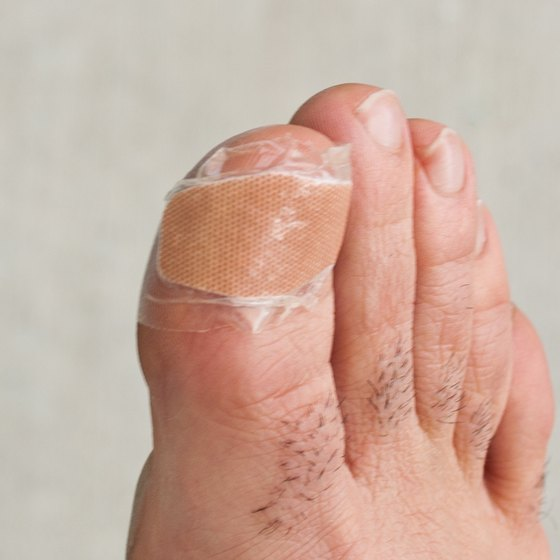 Infected Ingrown Toenail Remedy | Healthy Living