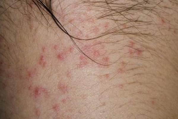 How To Heal Bed Bug Bites Healthy Living