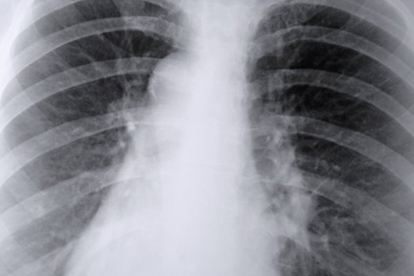 Los pulmones tienen otras funciones además de la respiración.