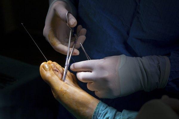 Human Foot Operation 5