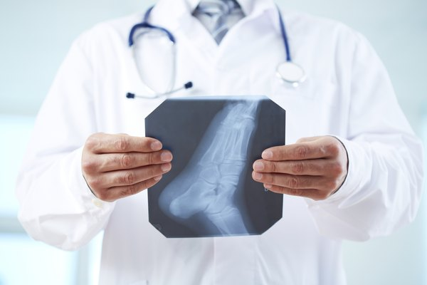 X-ray of foot