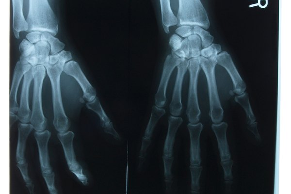 X-ray of hands
