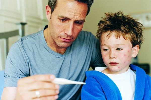 Father Checking Temperature of Son Sick With Chickenpox