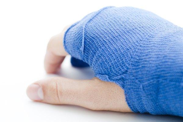 Hand bandaged in blue plaster