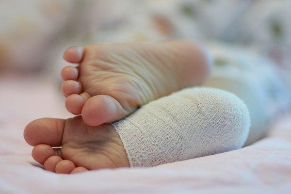 Bandage on baby's heel