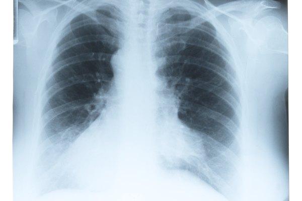 X-ray of ribcage