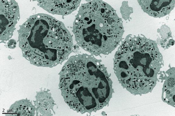 Human Neutrophils