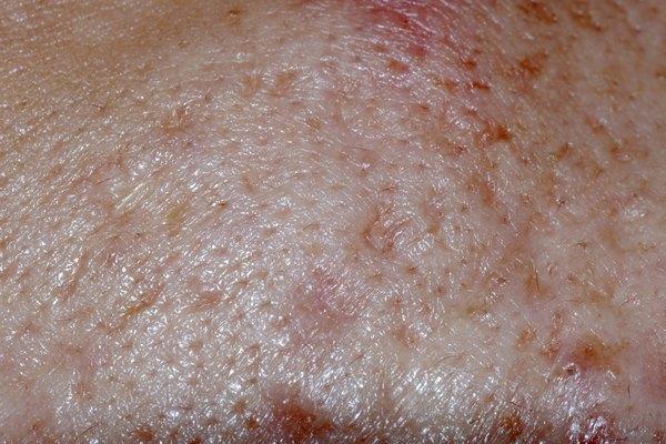 whelk skin texture