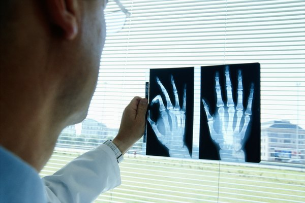 Radiologist looking x-rays of hands