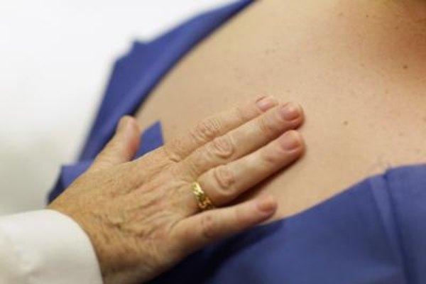 Los dermatólogos tratan cánceres, psoriasis y otras enfermedades de la piel.