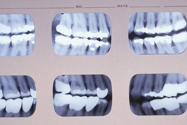 Set of dental X-Ray photos, close-up