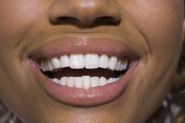 Las ideas de negocios de blanqueamiento de dientes pueden ayudar a los clientes a lograr una sonrisa mas brillante.
