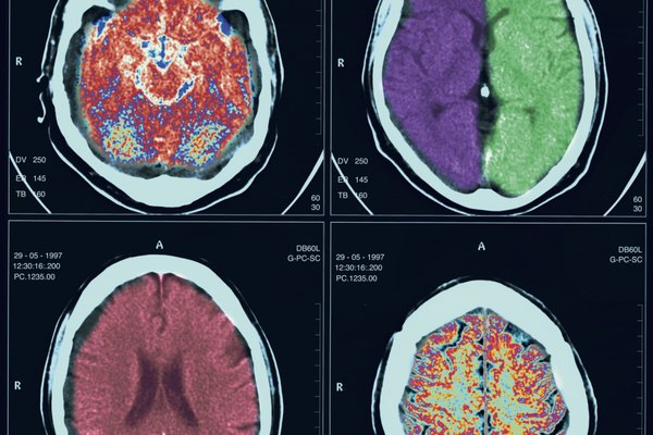 ct scanned images of the human brain