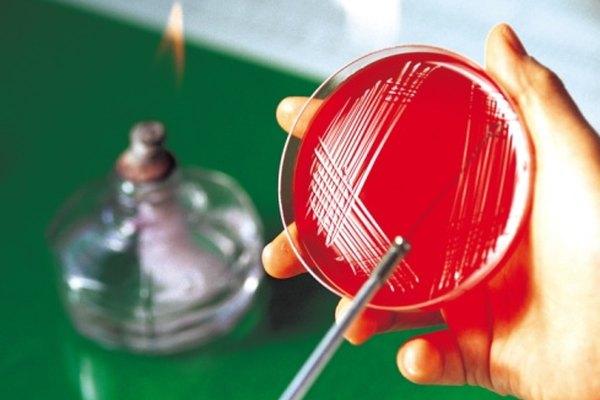 Estriar placas en cuadrantes aísla colonias de bacterias.